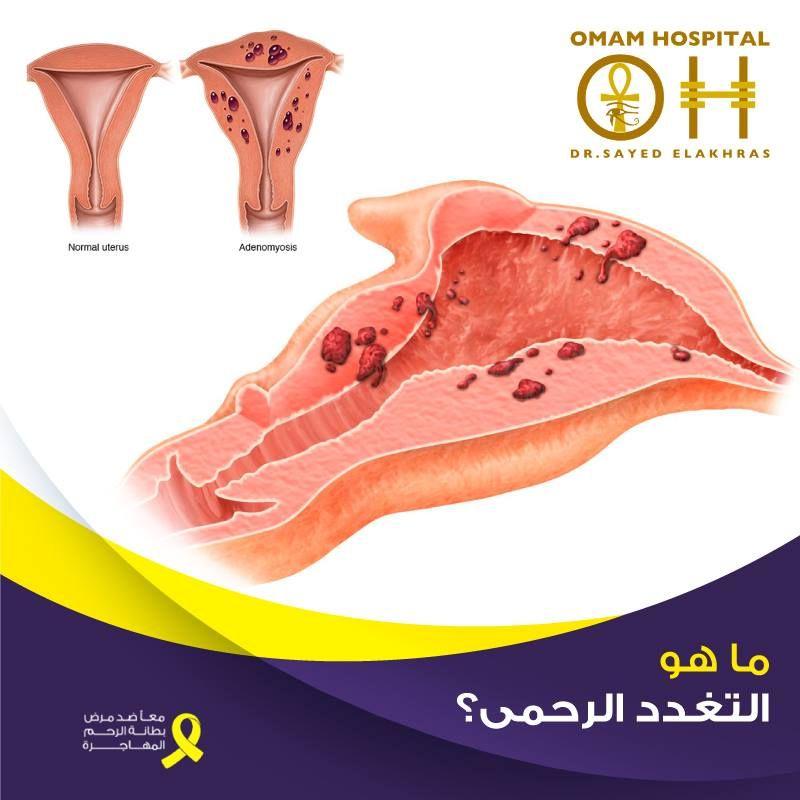 التغدد الرحمى هو حالة مرضية غير سرطانية يمكن أن تصيب الرحم ويمكن أن تتشابه أعراضها مع العديد من علامات و أعراض الأورام الليفية ويحدث التغدد الر Uterus Hospital