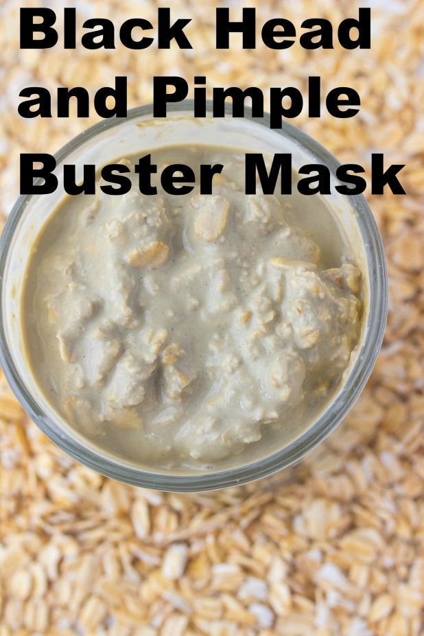 Black Head Buster Face Mask Beauty Pinterest Pimple Masking