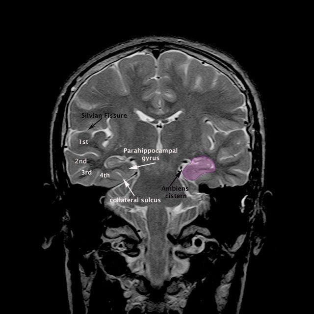Mri Brain Ambiens Cistern Anatomy Radiology Anatomy Images Brain