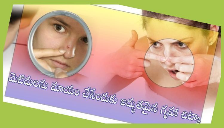 How To Get Rid Of Nose Pimple In One Day
