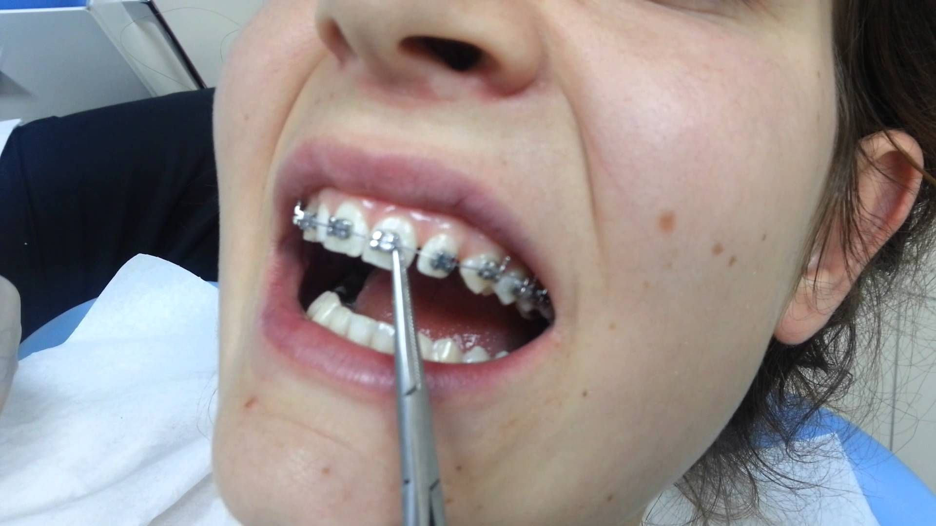 ne nebraska office implants info affordable certificate warranty compare lincoln view our dentures