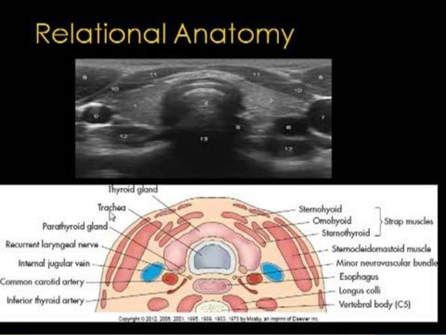 Thyroid Ultrasound Relational Anatomy 공부