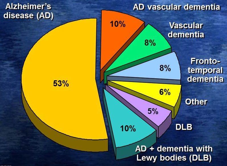 Pie Chart Alzheimers Disease 53 Ad Vascular Dementia 10