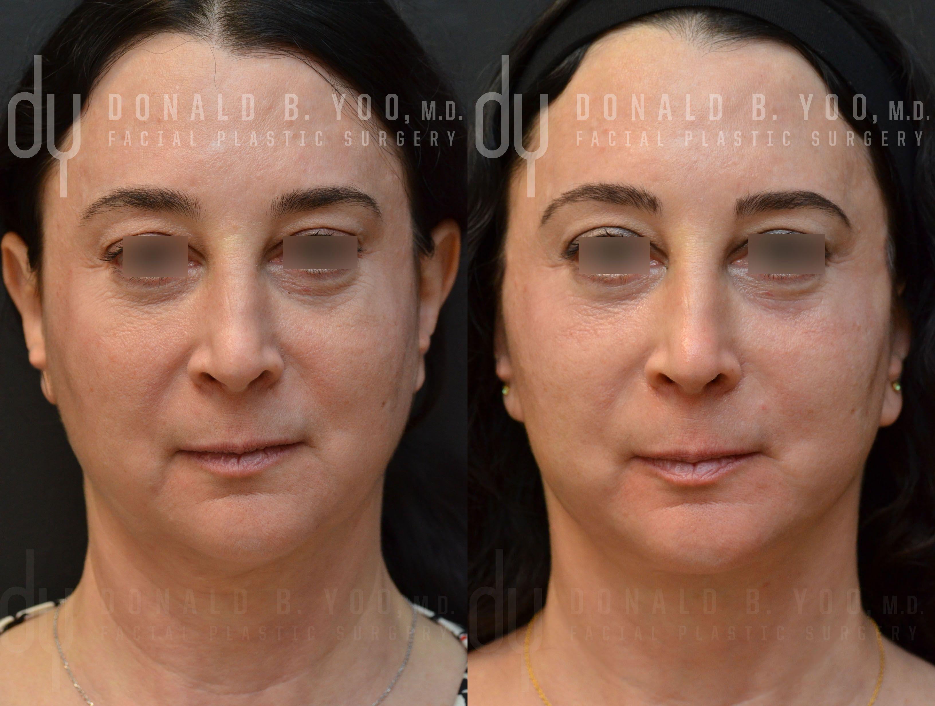 Beverly hill md lift and firming reviews - Beverly Hills Facelift Specialist Dr Donald Yoo Performed A Deep Plane Facelift This Before