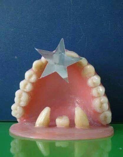 Feliz Navidad Nuestros Mejores Deseos Para Aquellos Que Tienen Dientes O Protesis O Incluso Solo En Laboratorio Dental Consultorio Dental Chistes De Navidad