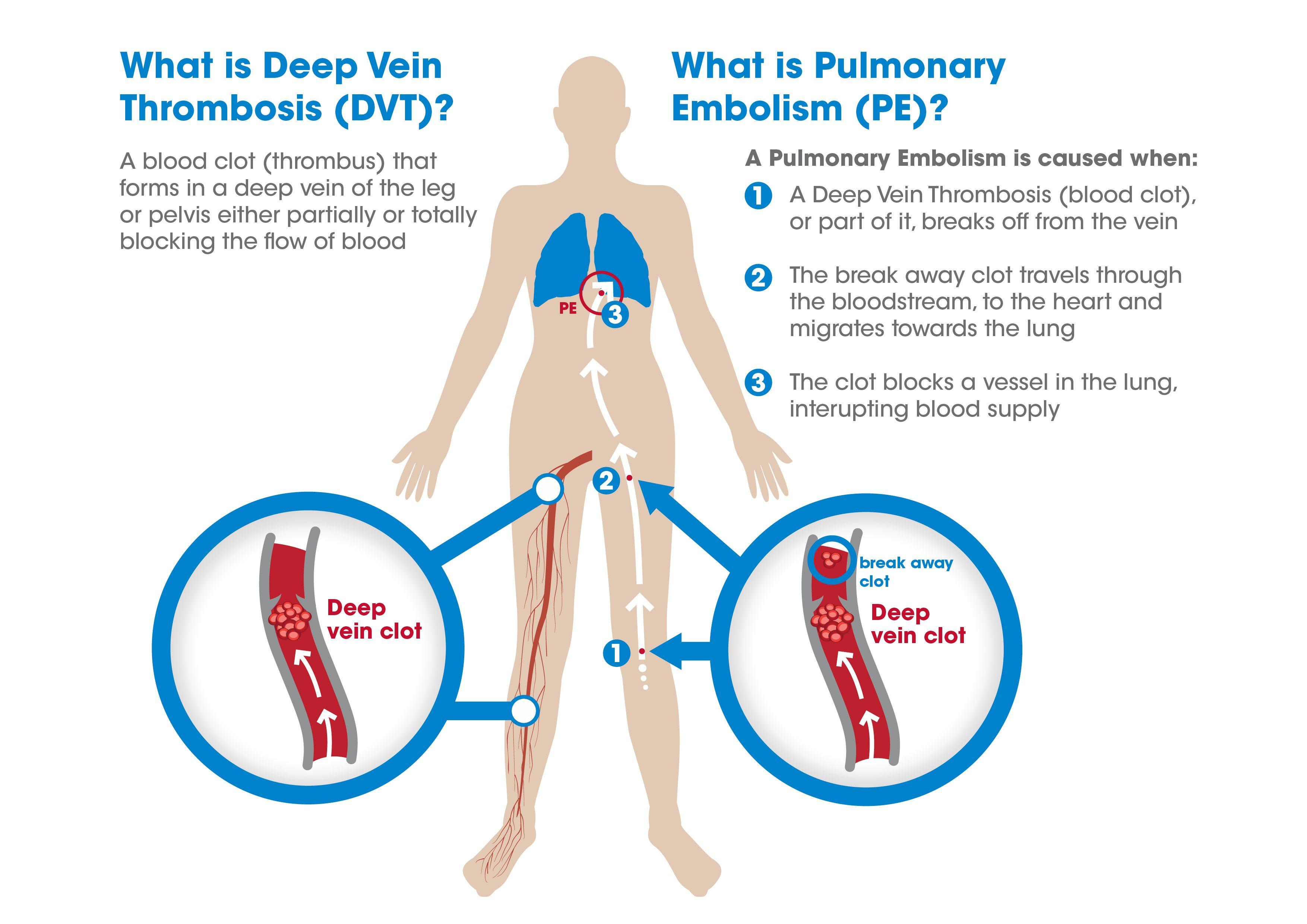 Pin on Deep Vein Thrombosis (DVT) Pulmonary Embolism (PE ...