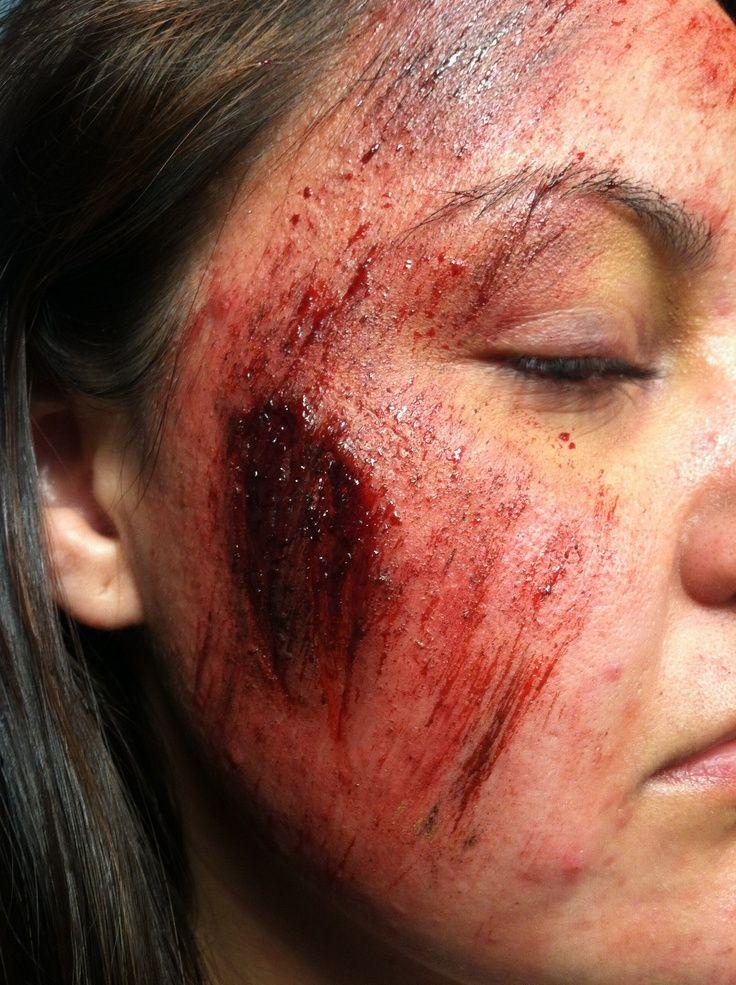 face road rash - Google Search   Makeup Morgue   Pinterest ...