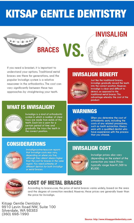 Braces Vs. Invisalign Cost Oral health care, Invisalign