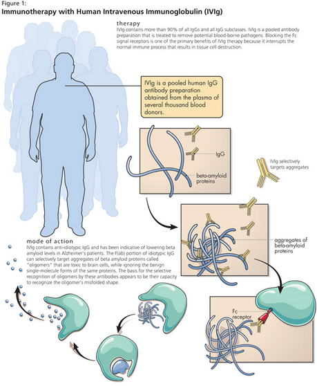 IVIg is a pooled human Immunoglobulin G (IgG) preparation obtained by cold ethanol extraction from the plasma of thousands of healthy blood donors. It is used as a treatment for a number of immune deficiency disorders and other syndromes. IVIg contains natural antibodies, including antiamyloid antibodies.