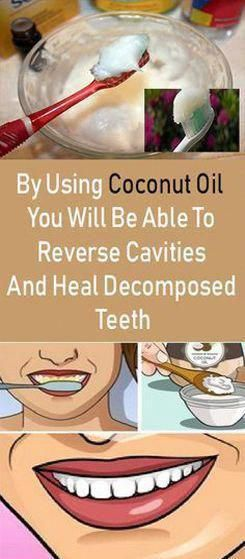 By Using Coconut Oil You Will Be Able To Reverse Cavities And Heal Decomposed Teeth Coconut oil is one of the most versatile and healthiest things we can use. It provides a myriad of medicinal uses, and apparently, it is excellent for our dental health.