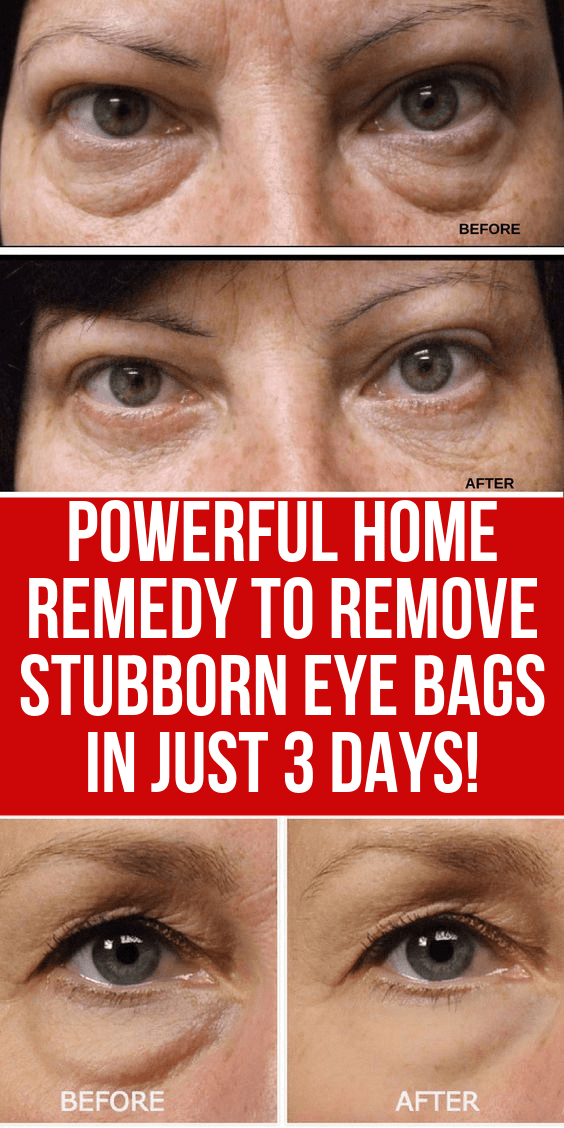 Powerful Home Remedy To Remove Stubborn Eye Bags In Just 3