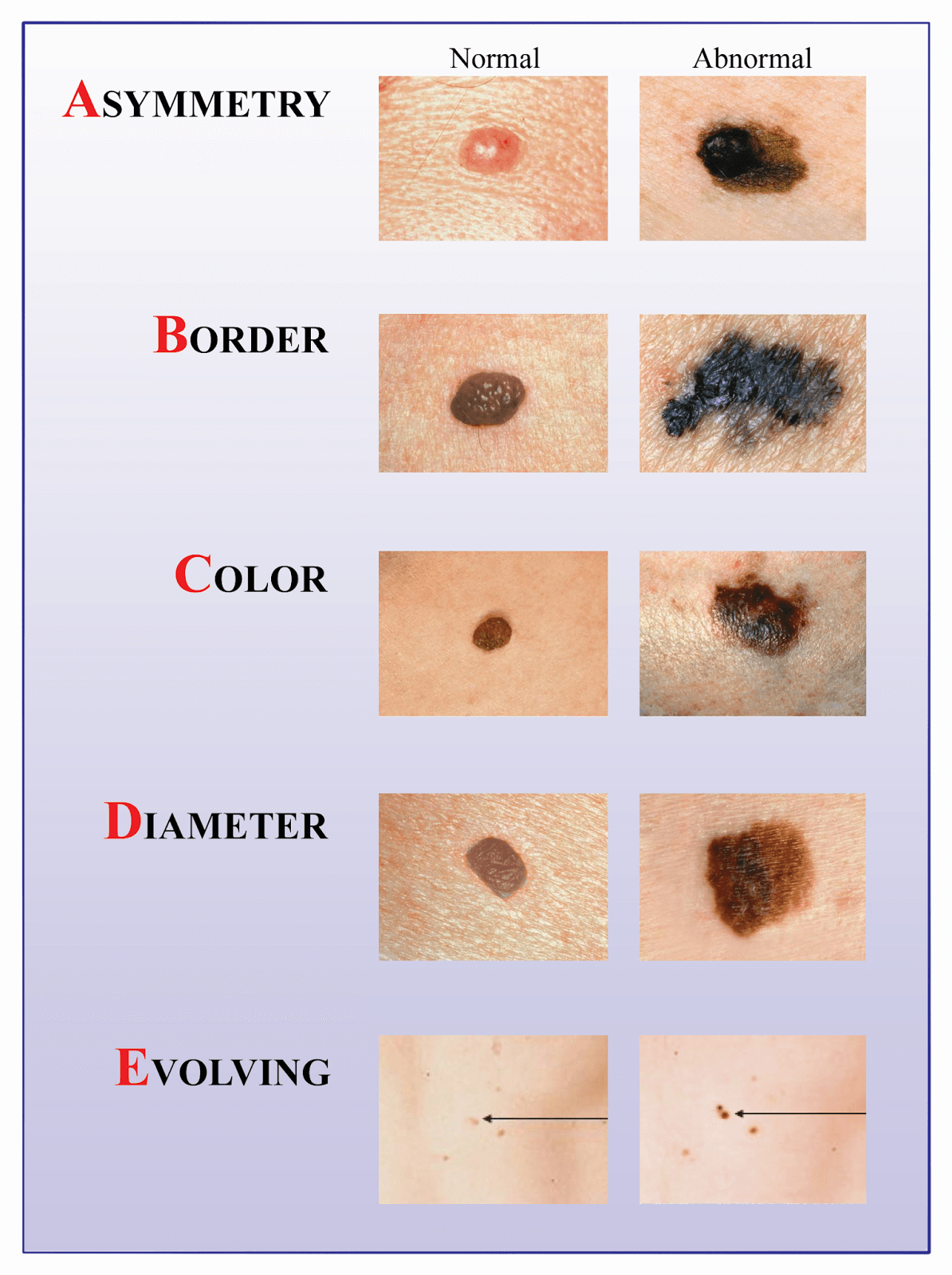 Pin On Skin Cancer Treatments