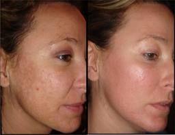 Laser Resurfacing For Wrinkles Skin Treatments Laser Skin
