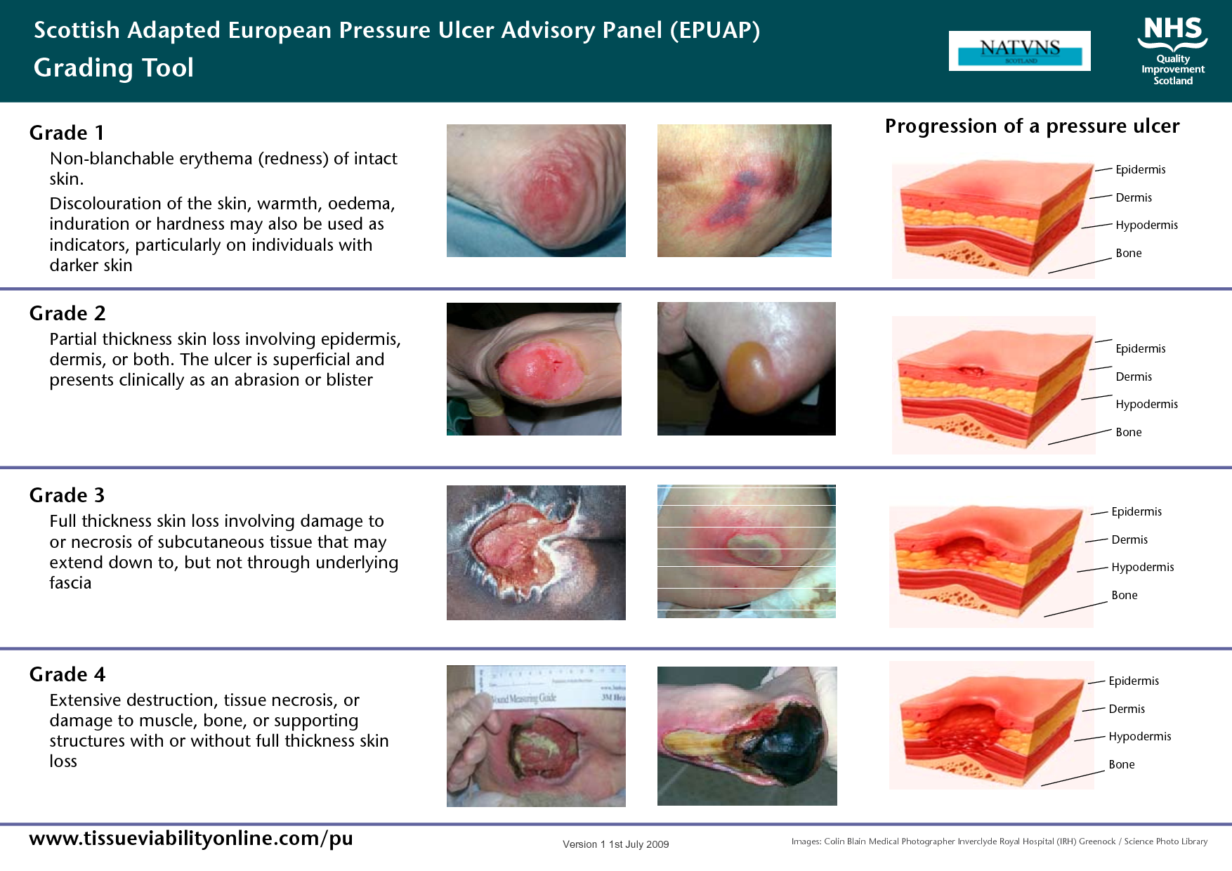 ulcer classification Scottish Adapted European Pressure