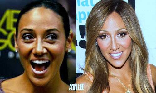 Pin On Plastic Surgery Before And After