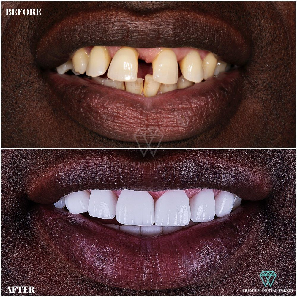 Stunning Smile Makeover With Zirconium Dental Crowns By