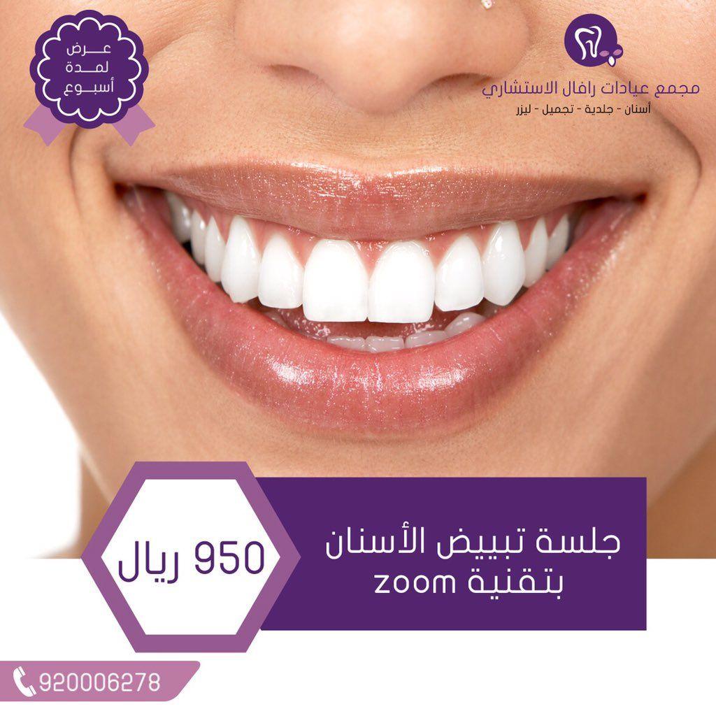 2 عيادات رافال تبييض الأسنان بالليزر الزووم Zoom الجيل الرابع Dental Posts Dental