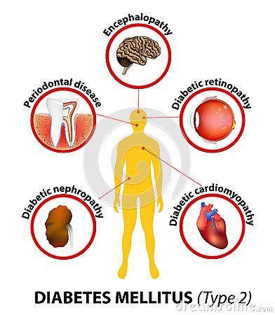 diabetes mellitus complicatie - Google zoeken | Lichaam