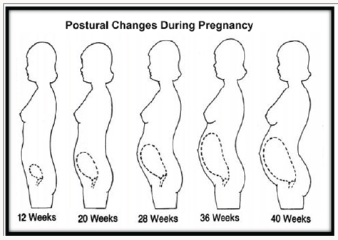 Pin by Lupine Publishers on Interventions in Gynecology