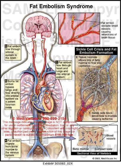 Personal Notes: (FES) Fat Embolism Syndrome. Also a possible ...