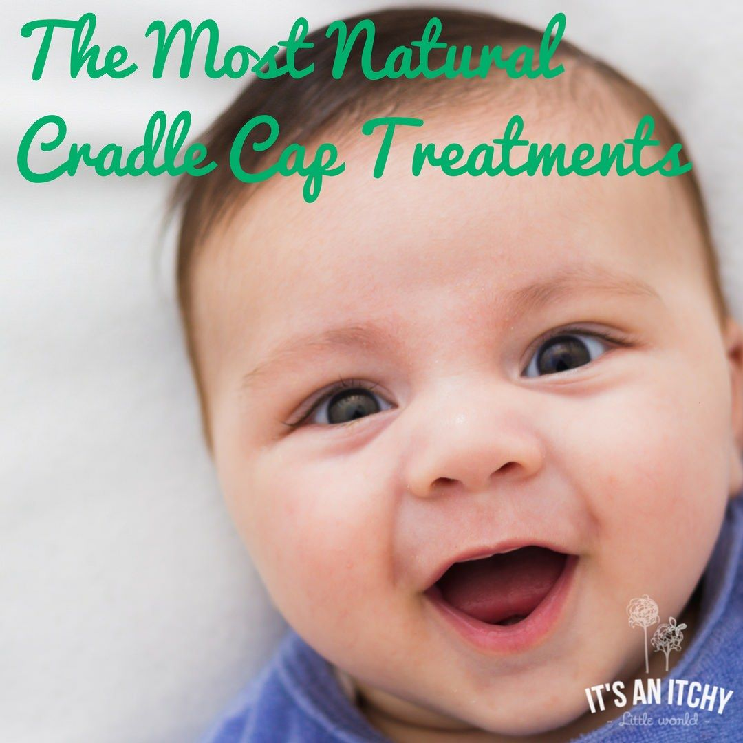 Discover The Most Natural Cradle Cap Treatments Cradle Cap Treatment Cradle Cap Cradle Cap Cure