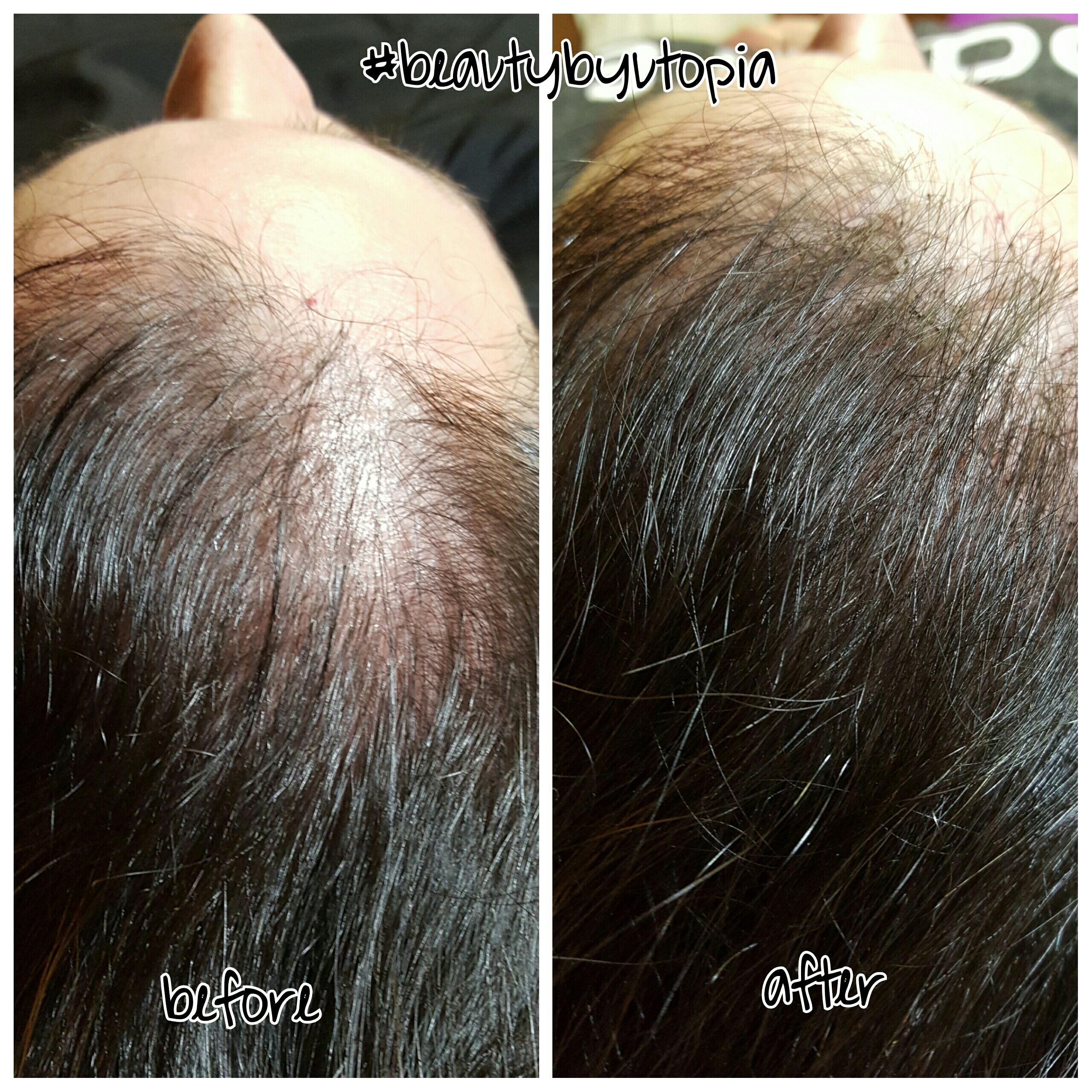 The solution for thinning hair Exclusive to Utopia salon 20%off 360 ...
