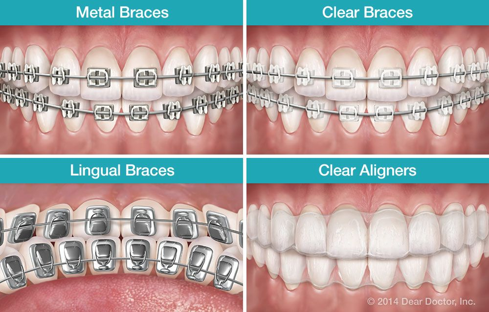 Types Of Braces To Meet The Needs Of Patients There Are
