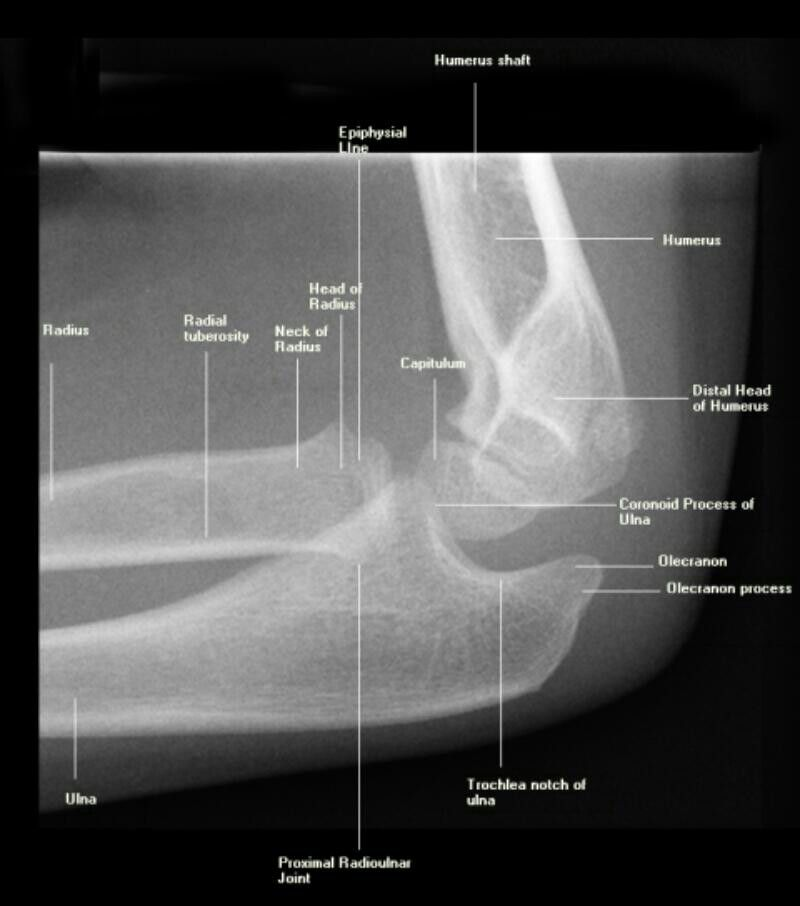 Lateral X-ray of elbow   Radiology student, Radiologic ...