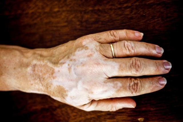 What Are These White Spots On My Face Vitiligo Treatment Vitiligo Cure Vitiligo