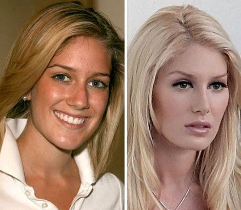 11 Best Plastic Surgery Before and After