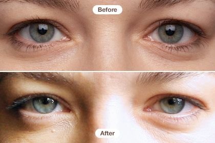 Our Six Week Eye Cream Expose Olay Eye Cream Anti Aging Skin