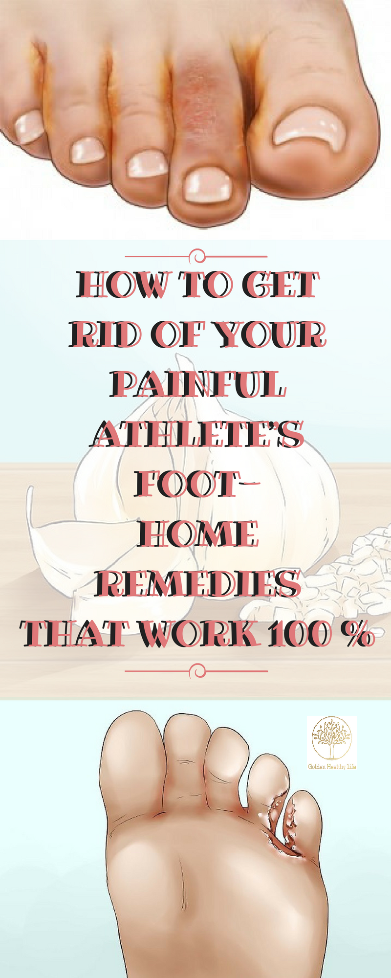 Athleteus foot is a fungal infection that usually thrives in warm