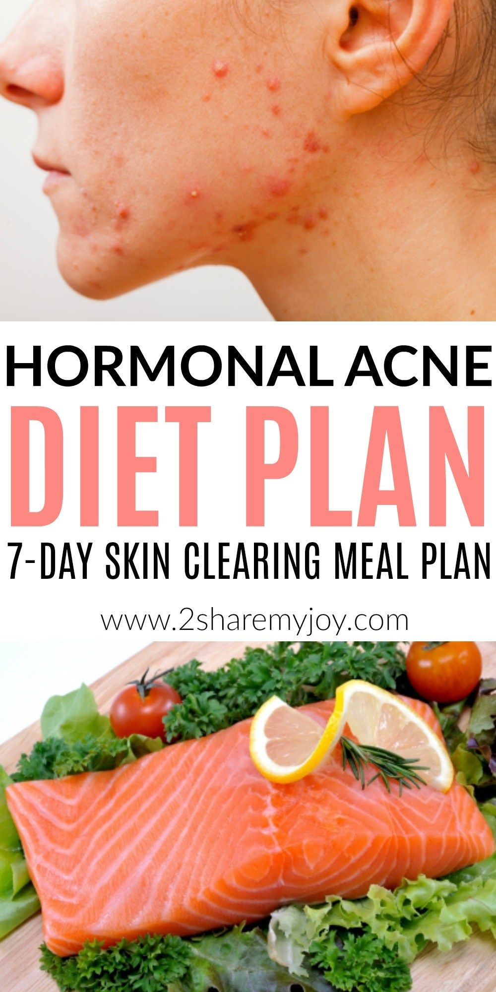 Are Confused About How To Eat When You Suffer From Acne Does It Seem Like Everything Could Cause Acne Are You Wondering Why Your Hormones Are So Out Of