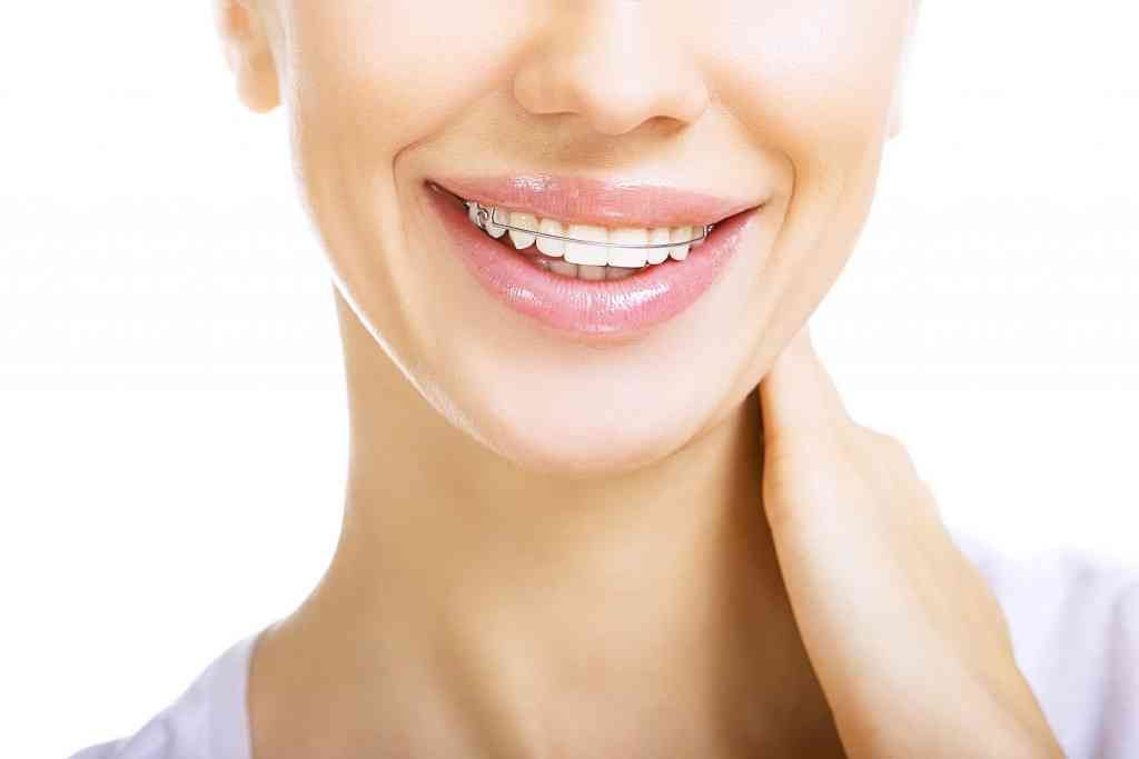Retainers A great option to maintain your straight smile