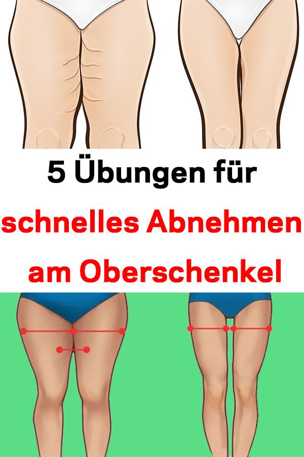 Abnehmen von Hüften und Oberschenkeln