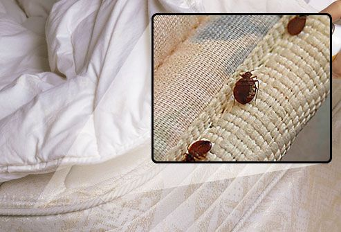 Slideshow Bedbugs In Your Sheets Bed Bugs Bed Bug Bites Fleas