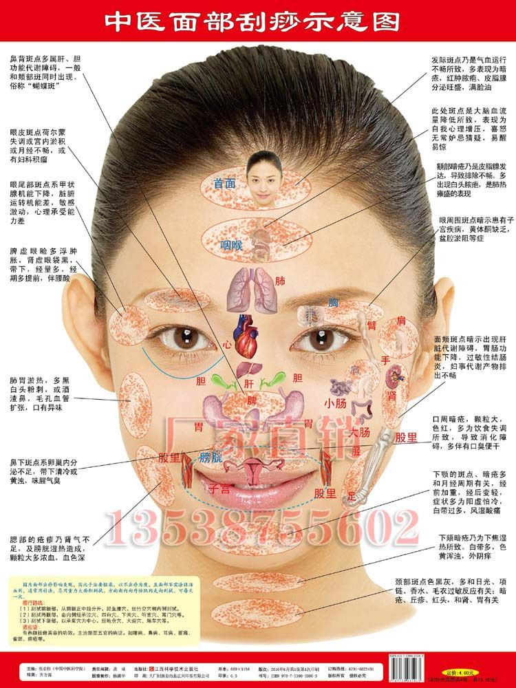 Gua sha (刮痧), meaning