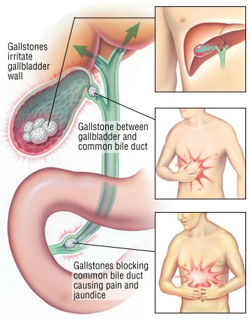 Remove The Stones From The Gall Bladder And The Liver In A Natural Way Gallbladder Bile Duct Health