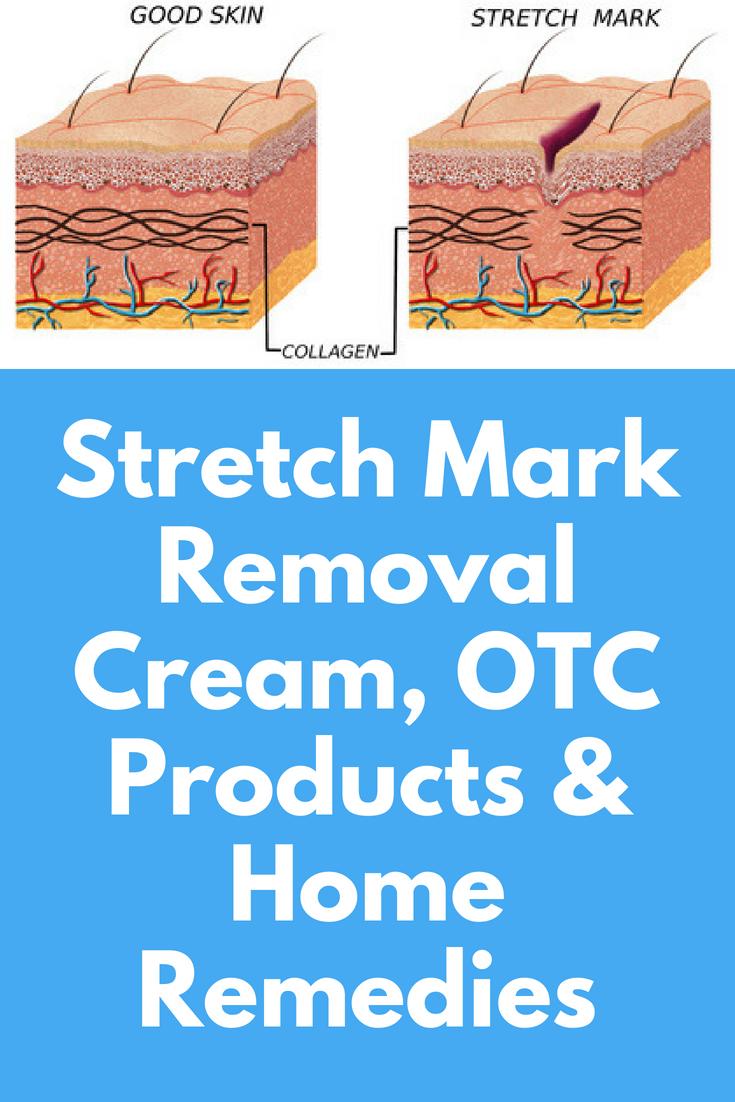 stretch marks mark removal cream abnormal