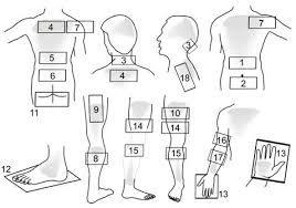 Acupressure Point For Psoriasis Acupressure Points Psoriasis Acupressure