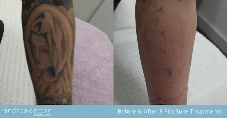 Forearm Tattoo Before And After Three Picosure Laser Treatments Tattooremoval Tattoos Inked Tatto Tattoo Removal Cost Laser Tattoo Picosure Tattoo Removal