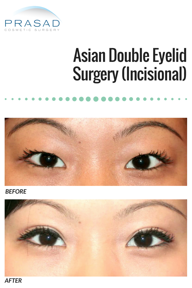 When Can You Put On Makeup After Double Eyelid Surgery | Saubhaya Makeup