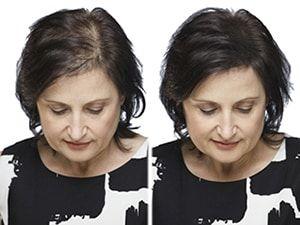 capelli diradati donne rimedi   Capelli, Rimedi per ...