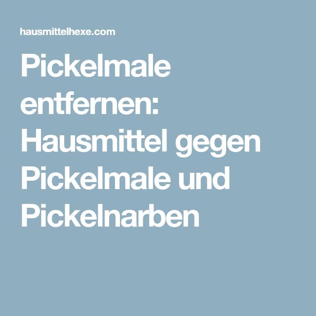 Hilfe Gegen Pickelmale
