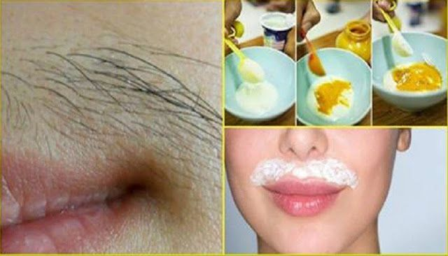 how to get rid of mustache permanently