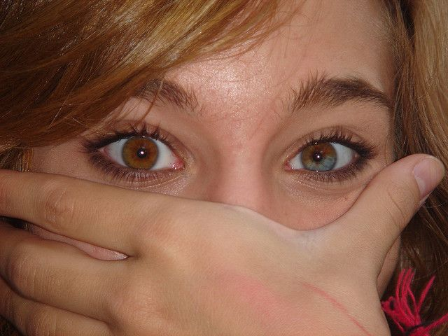 Ojos Heterocromicos Different Colored Eyes Rare Eyes Pretty Eyes