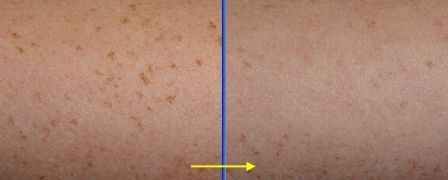 Laser Hair Removal In Tokyo Japan Tattoo Removal Ipl Laser Mole Removal Mole Removal Ipl Laser Ipl