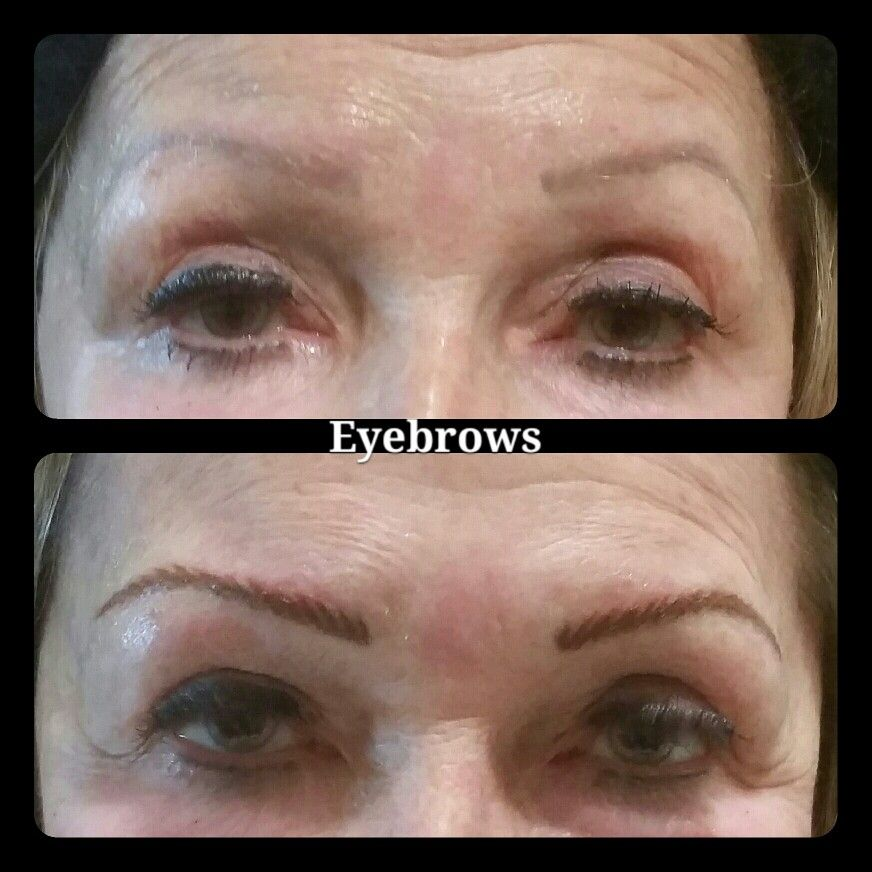 Permanent Eyebrows Pictures Before And Immediately After Procedure