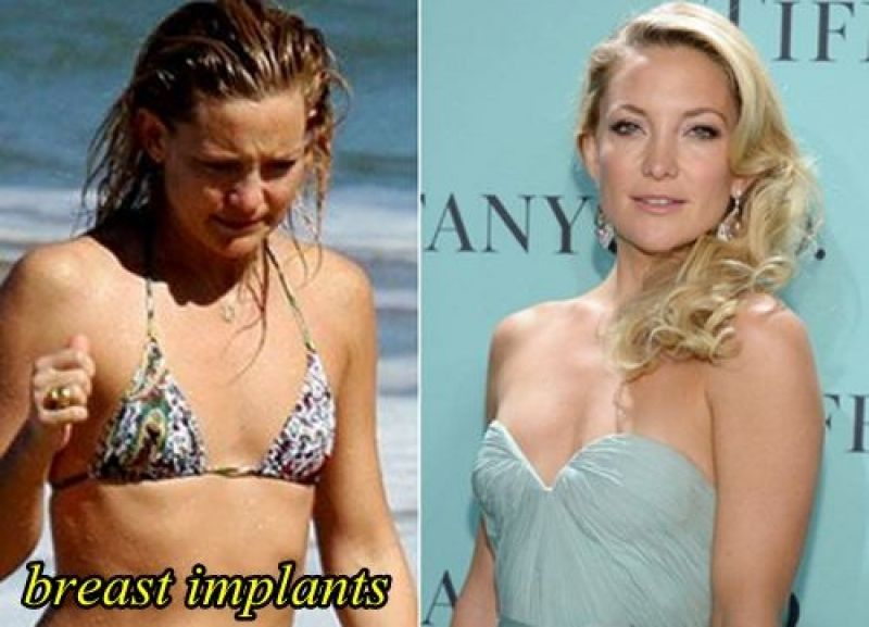 Something Kate hudson breast augmentation valuable message