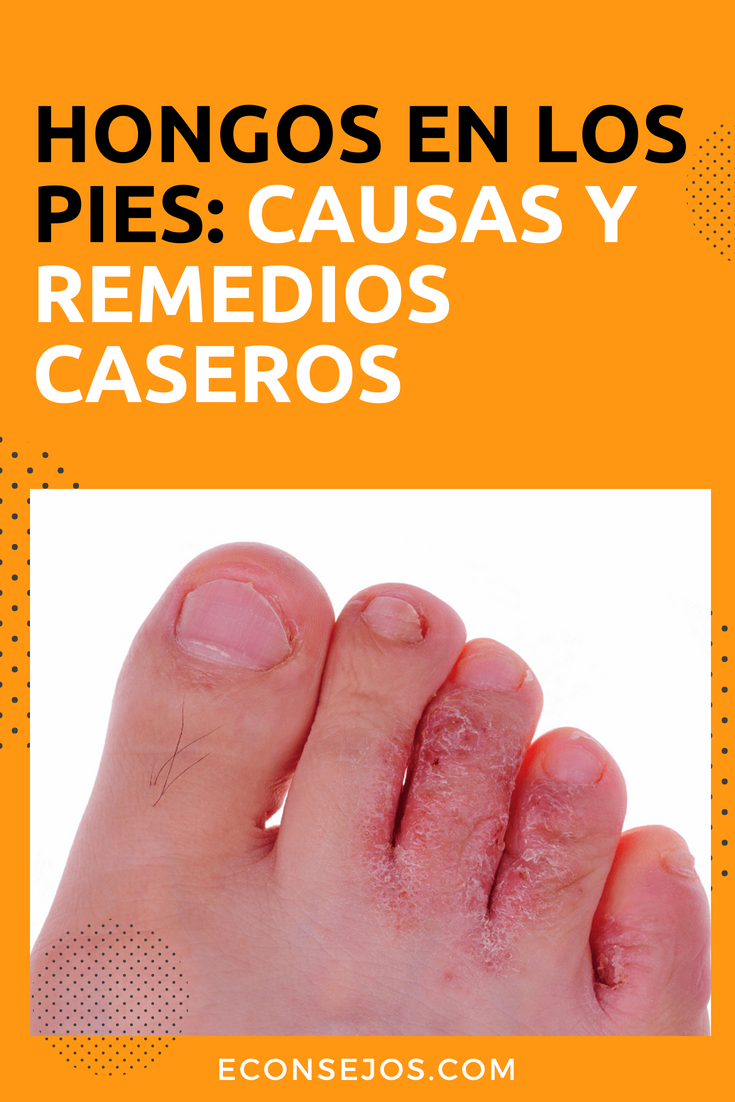 hongo en los pies sintomas de diabetes